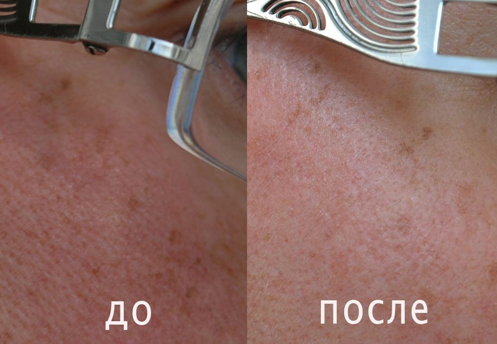 фото кожи до и после