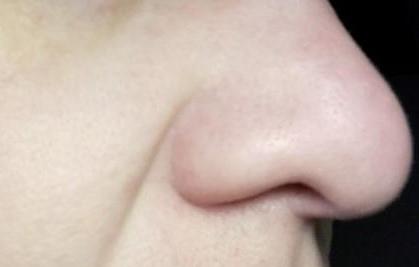 макро фото носа